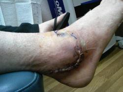 ANKLE WITH STAPLES.JPG